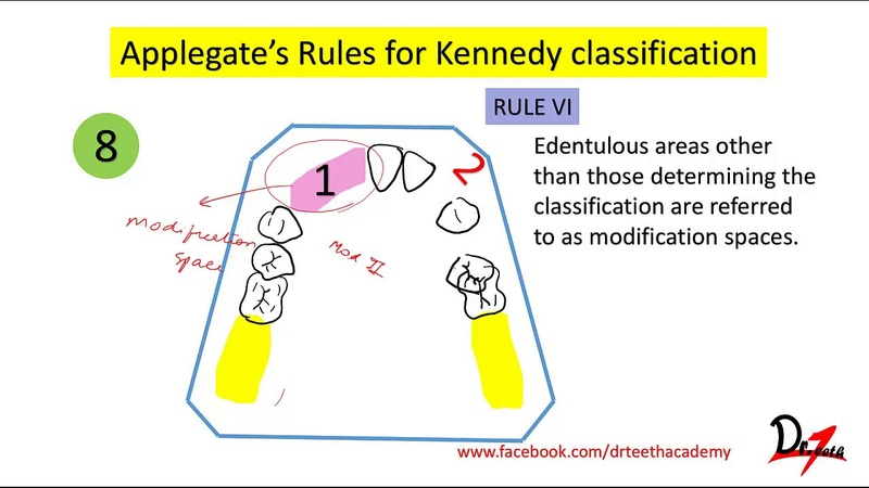 Kennedy's classification Applegate's rules Easy