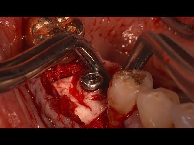 Collagen Membrane fixation technique using Healing abutment