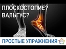 Убираем плоскостопие вальгус косточка на большом пальце стопы