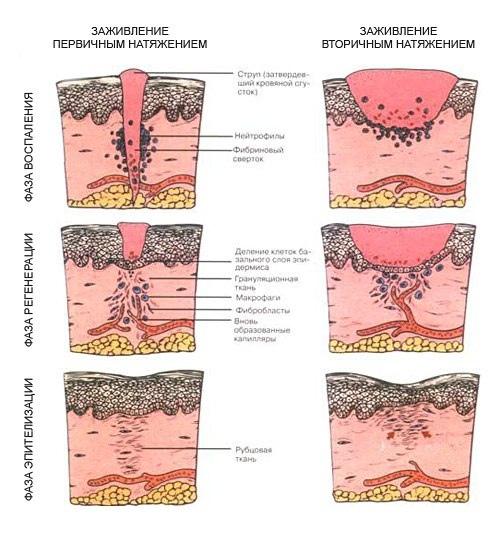 Фазы нормального раневого процесса, изображение №1