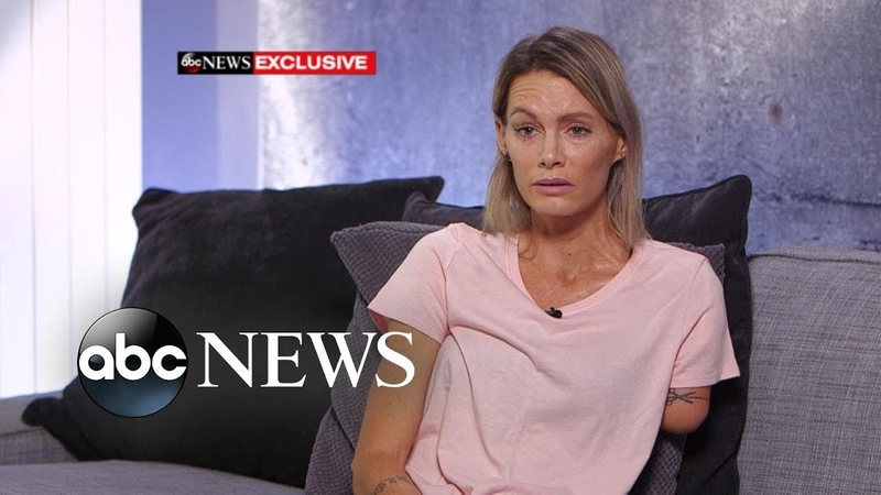 'Resident Evil' stuntwoman speaks out about injury lawsuit l ABC News