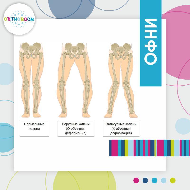 Как определить патологию стоп у ребенка, изображение №2