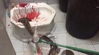 На мужчину прямо в унитазе напала змея, кошмар.